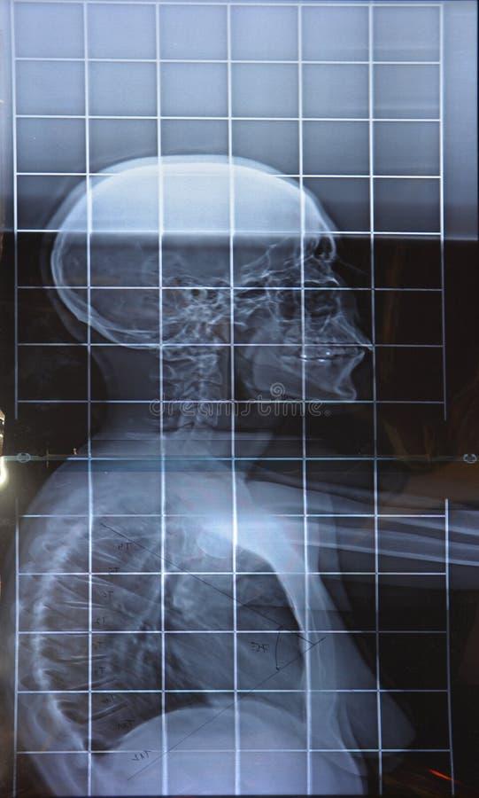 X promień rdzenia kręgowego vertical stojak obraz stock