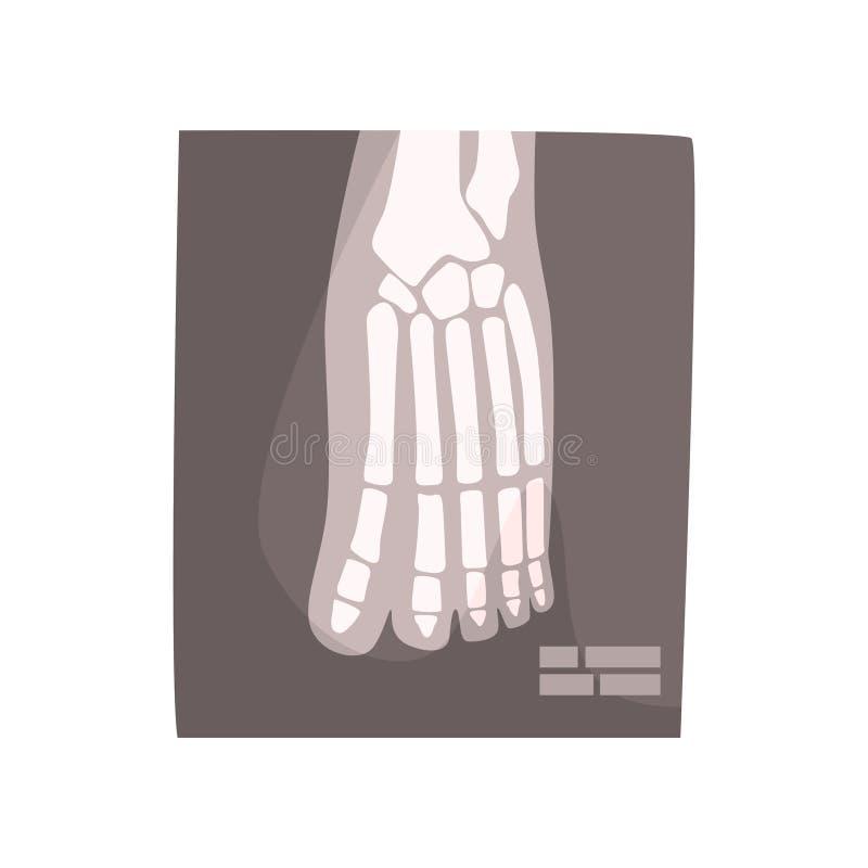 X promienia wizerunek ludzkiej stopy kreskówki wektoru ilustracja ilustracji