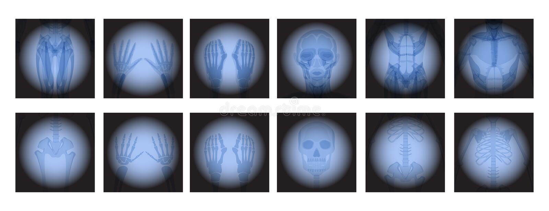 X radiología de Ray ilustración del vector