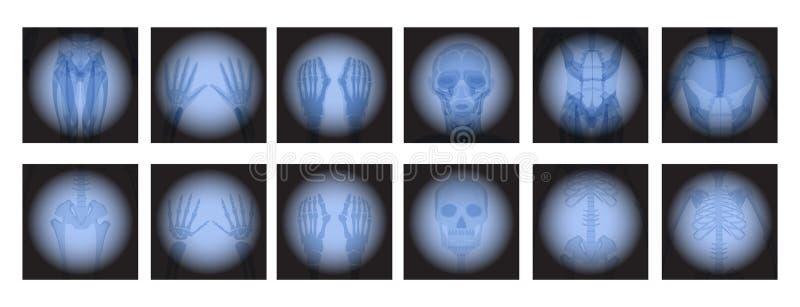 X radiologia di Ray illustrazione vettoriale