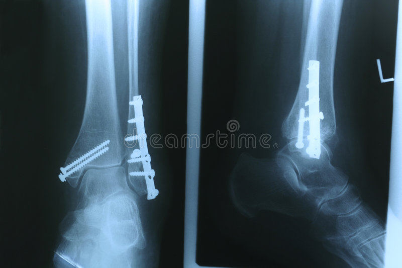 X-ray 02 Royalty Free Stock Photo