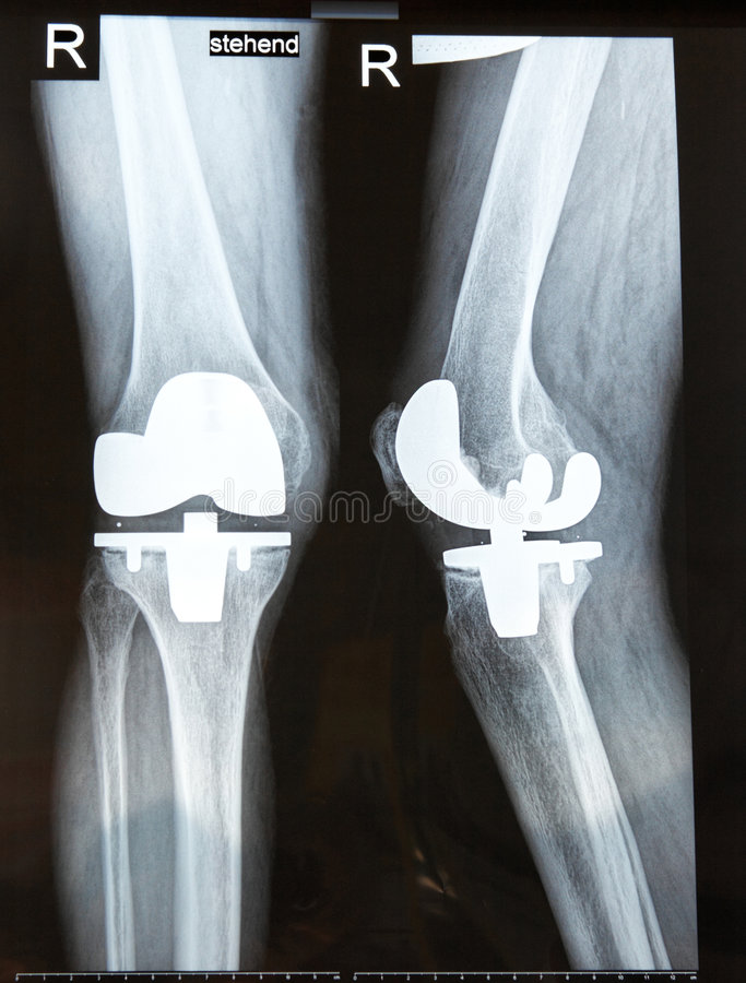 X-ray. Pattern of an artificial knee joint stock photography