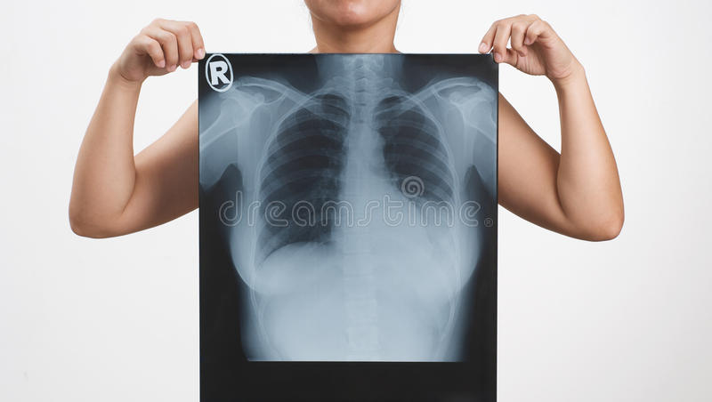 Download X-ray stock image. Image of isolated, chest, heart, lung - 14833315