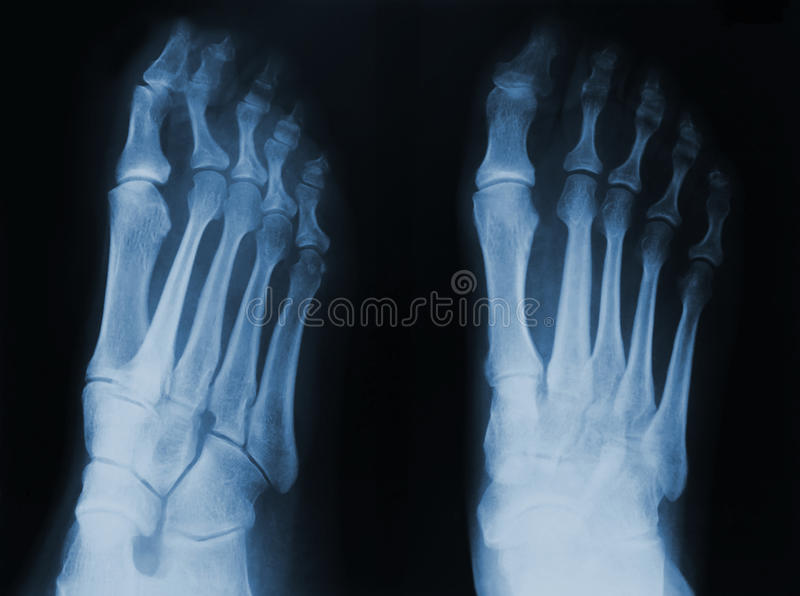 Download X-ray Royalty Free Stock Image - Image: 20814606
