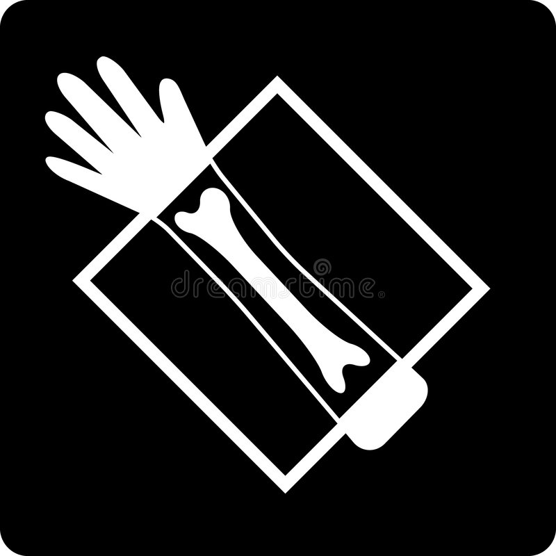 X-ray. Hand X-ray on black film vector illustration