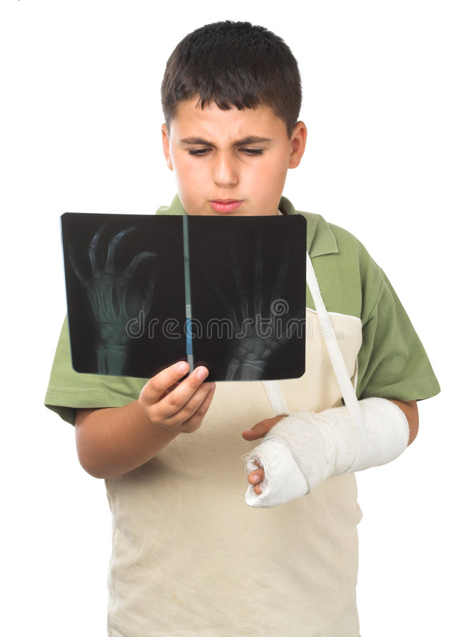Download X-ray stock photo. Image of child, concept, broken, painful - 5149078