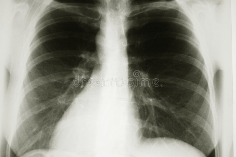 X-ray. Xray of chest stock photography