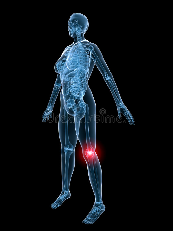 X ray anatomy painful knee stock illustration illustration of human download x ray anatomy painful knee stock illustration illustration of human 3946856 ccuart Images