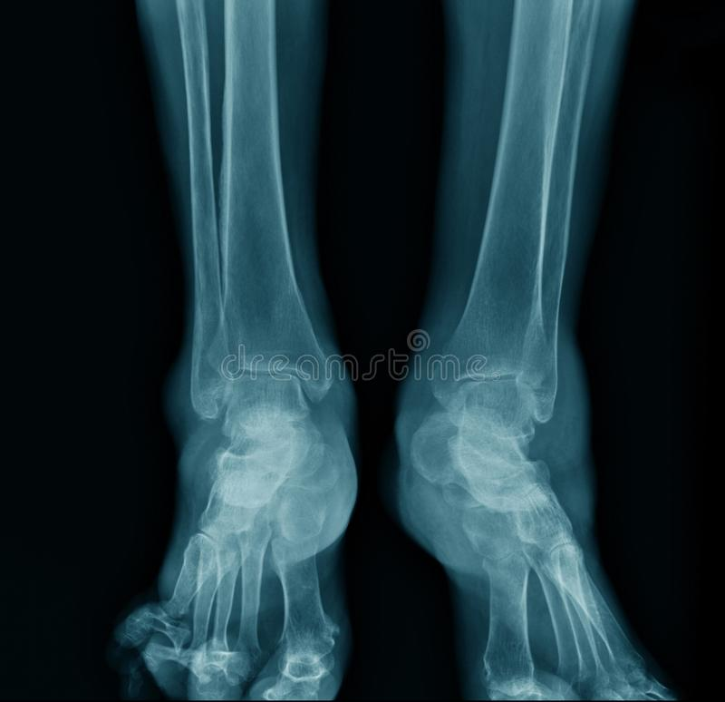 X-ray ankle AP view royalty free stock images