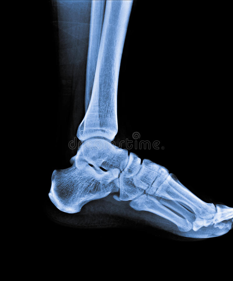 X Ray of Ankle joint royalty free stock photography