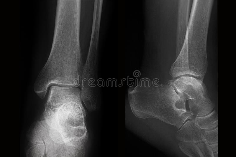 Plain film X-ray of ankle in two projections, radiography stock photos