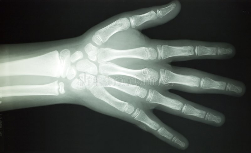 X RAY BODY PARTS stock image