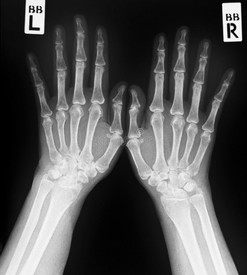 X-ray of both human hands.Normal human hands. royalty free stock photo