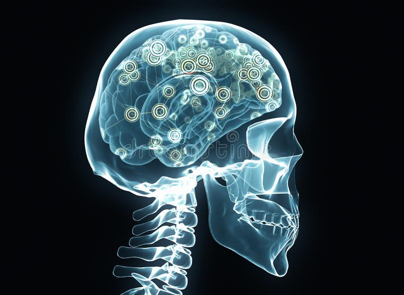 X-ray brain and skeleton royalty free stock photo