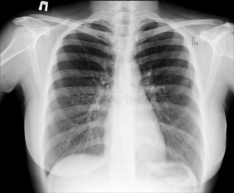 X-ray of chest stock photography