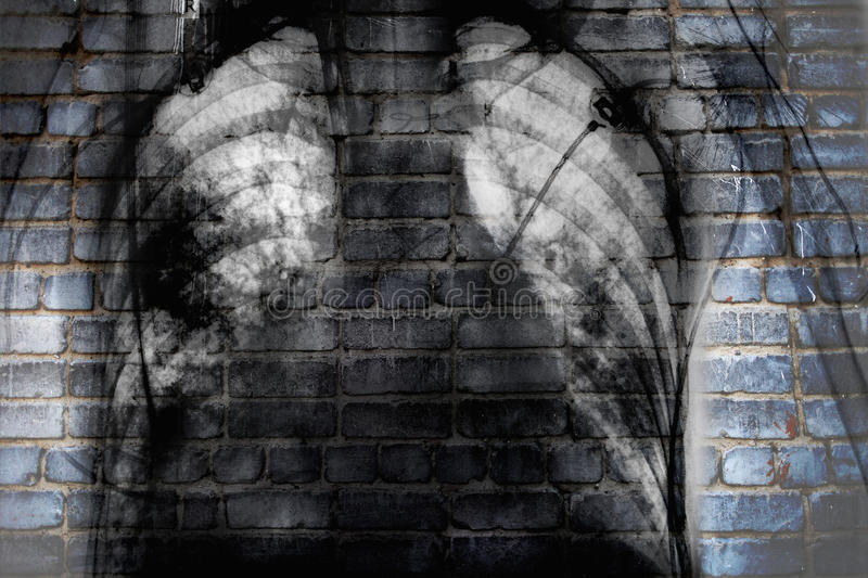 X-ray of chest on the brick wall, concept of social trouble stock photo