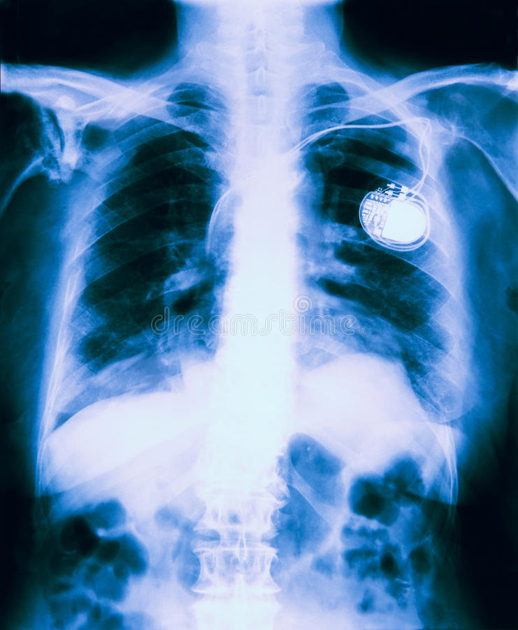 X Ray Of Chest Showing Pacemaker Fitted. On Black Background stock images