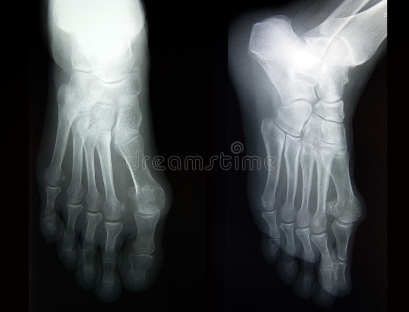 Download Radiography Of Complete Foot In Two Projections Stock Photo - Image: 22489856