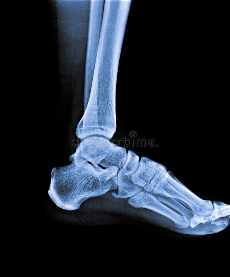 Moderno Hip Lateral Anatomía X Ray Composición - Imágenes de ...