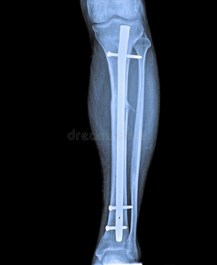 X Ray della gamba con la frattura e l'impianto fotografie stock libere da diritti