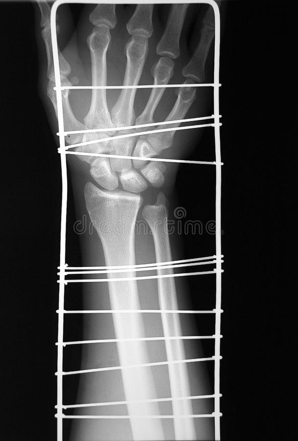 X-ray of distal arm and immobilisation, fracture? stock images