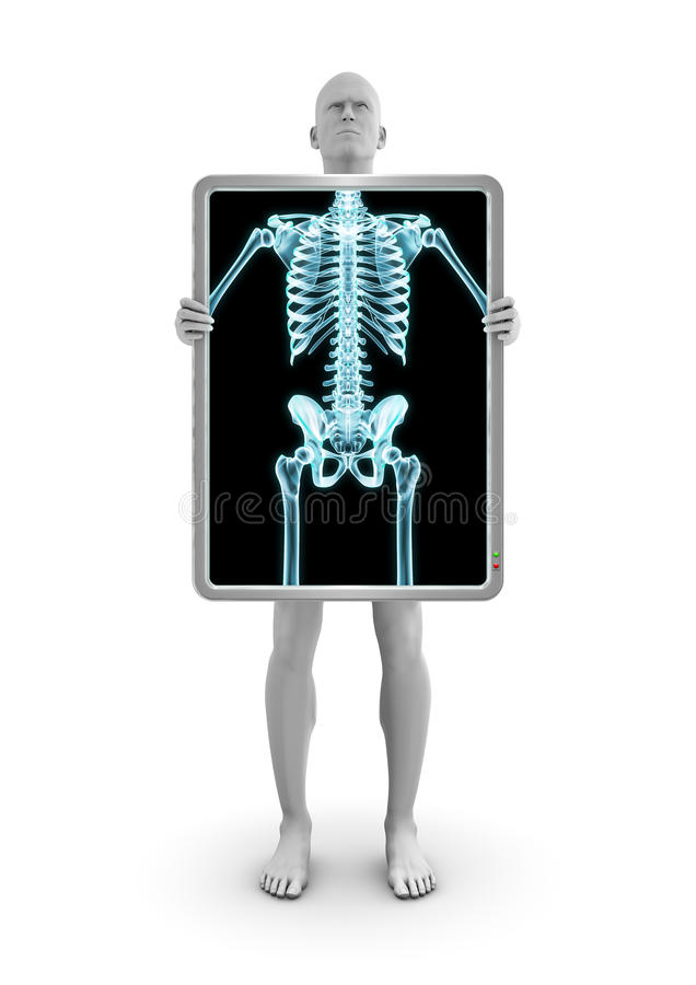 Download X-ray Dude Royalty Free Stock Images - Image: 26936089