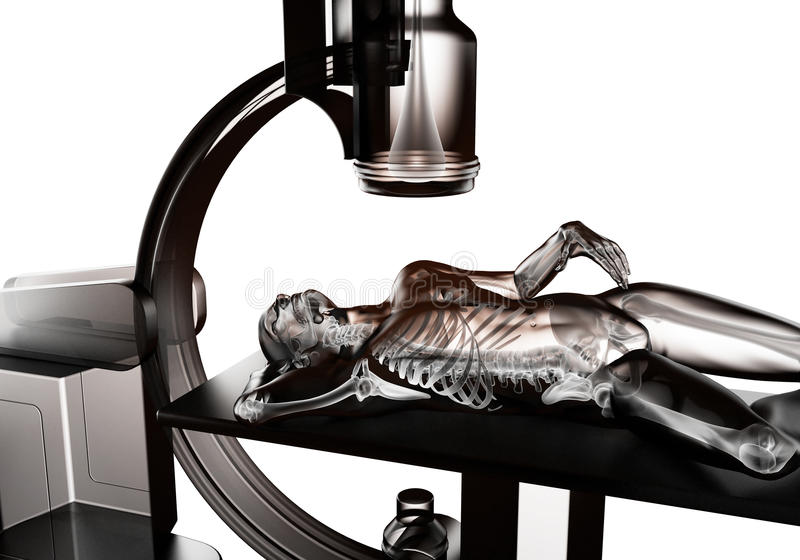 Download X-ray examination stock illustration. Image of human - 27616670