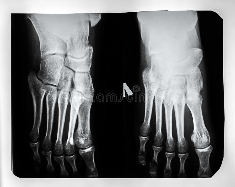 X-ray of the feet royalty free stock photo