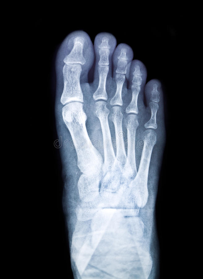 X-ray film. X-ray of foot on black background royalty free stock photos