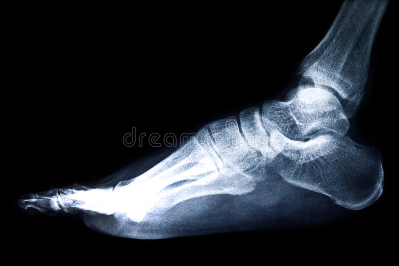 Download X-ray film stock photo. Image of diagnostic, diagnosis - 24874232