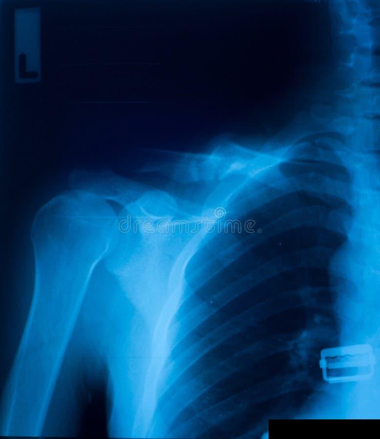 X-ray film royalty free stock photo