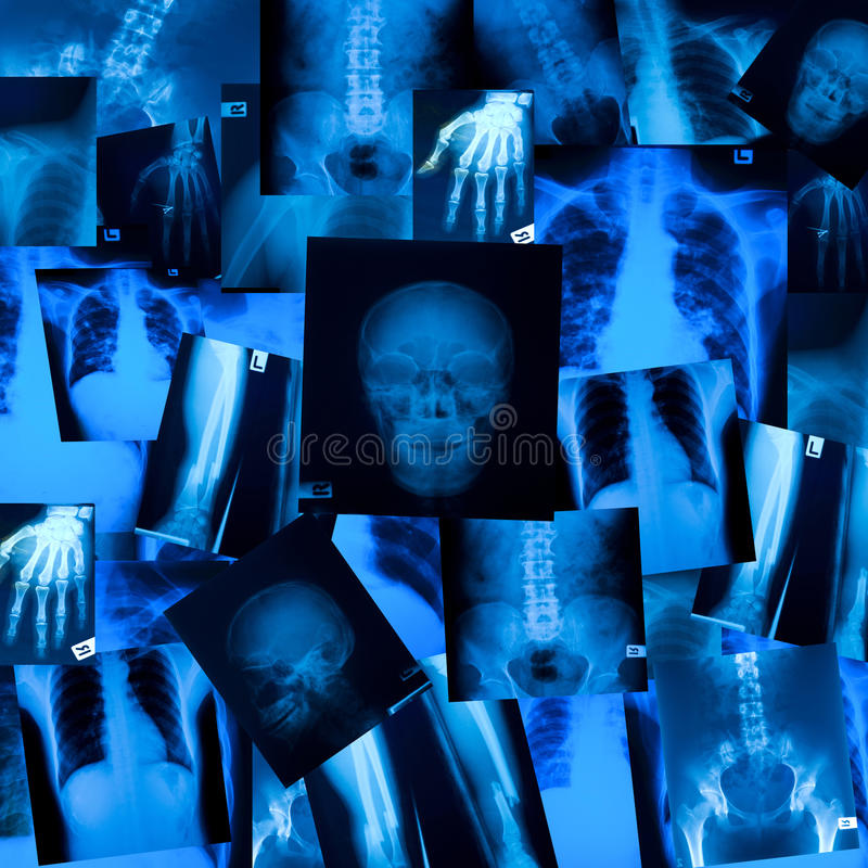 X ray film background stock images