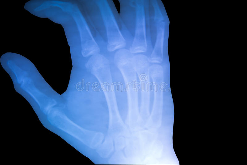 X-ray film show normal human's hand right. View of x-ray film show normal human's hand right stock images