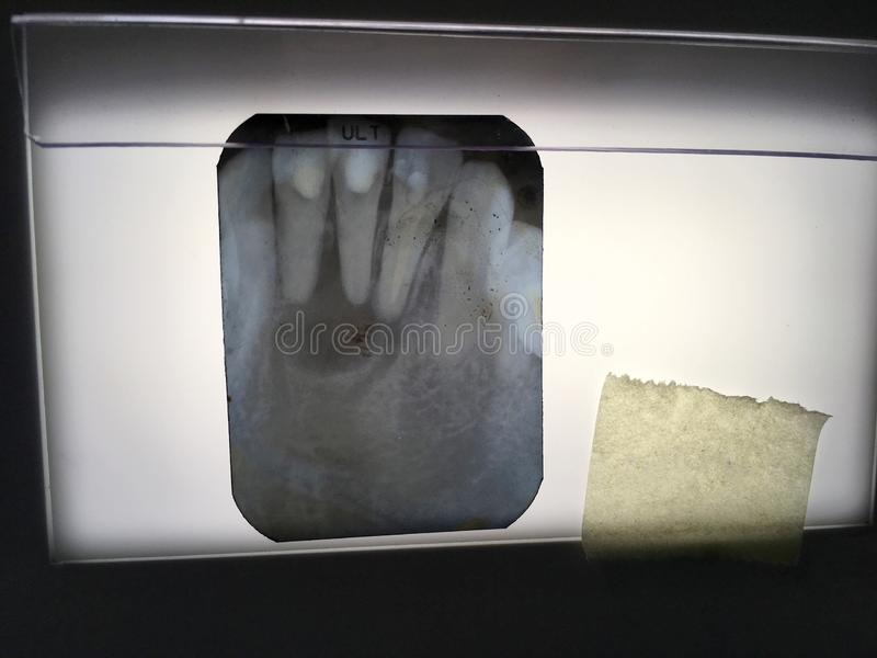 The X-ray film of teeth diagnosed in the dental clinic of Thailand Bangkok; Thailand December 1, 2018. Photo of The X-ray film of teeth diagnosed in the dental stock photo