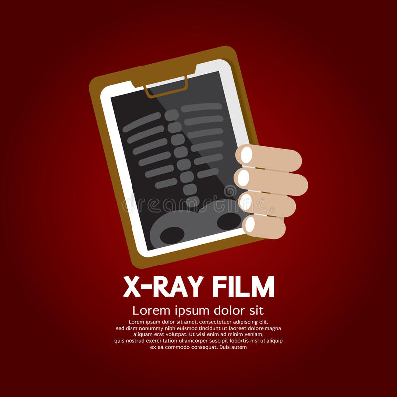 X-Ray Film. Vector Illustration vector illustration