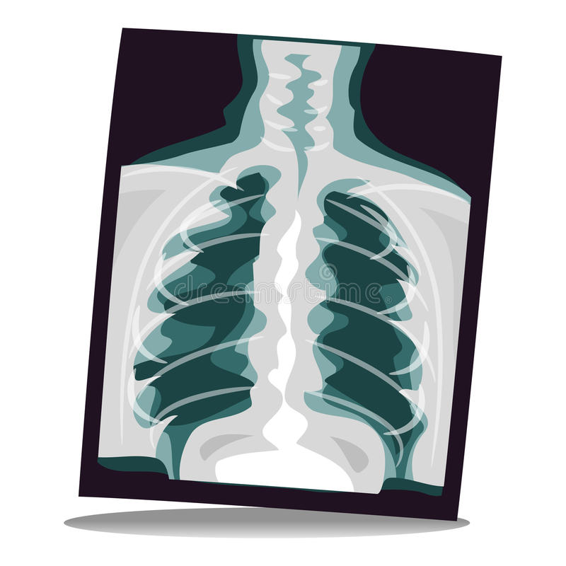 X-ray Film. Vector Illustration of X-ray Film royalty free illustration