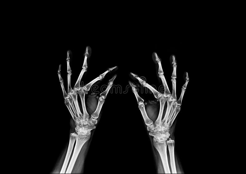 X-ray hand and finger royalty free stock image