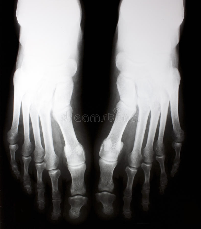 X-ray of foot royalty free stock photography