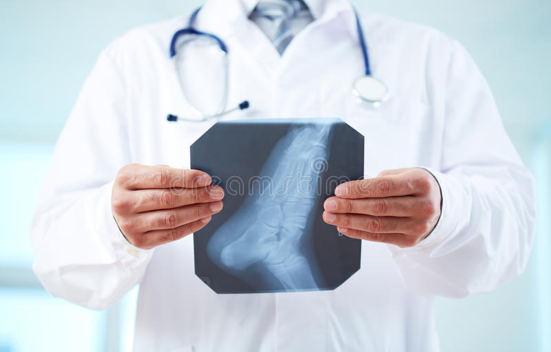 Download X-ray Of Foot Royalty Free Stock Images - Image: 33656759