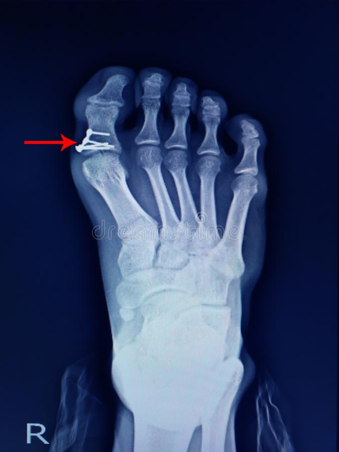 X-ray foot fracture proximal phalang and surgery fix mini plate and screws. On arrow point royalty free stock photo