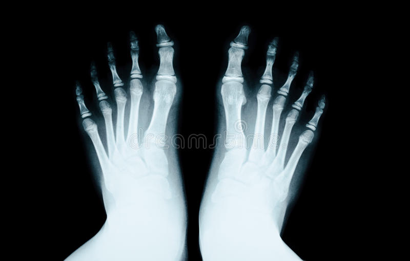 X-RAY of foot human. stock photos