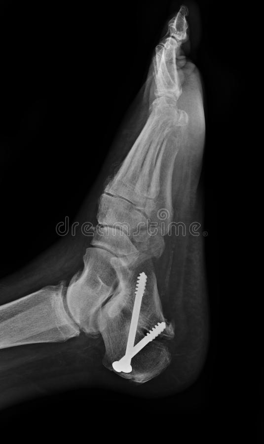 X-ray of foot stock photo. Image of patient, life, anatomy - 67129284