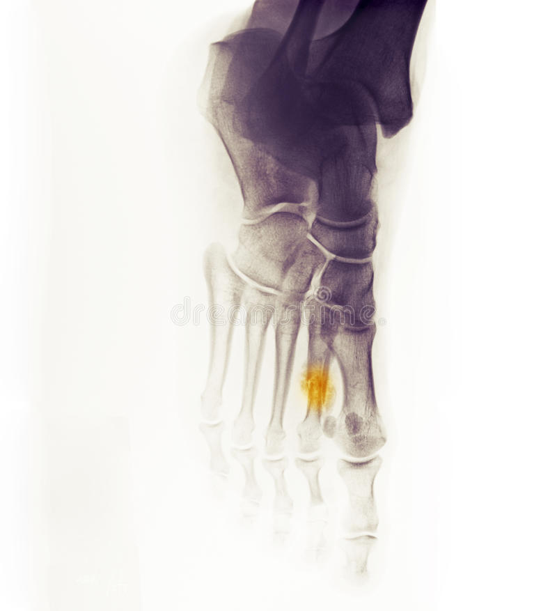 Download X-ray Of The Foot Showing A Healing Fracture Stock Image - Image: 15182887