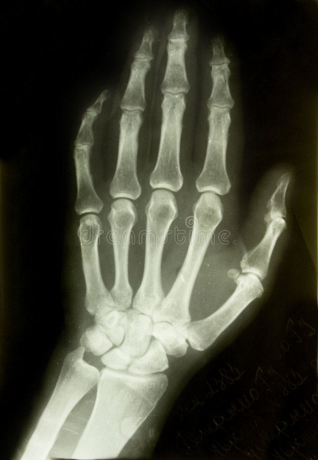 X-ray front picture of the palm. X-ray picture of the palm of adult man royalty free stock photos
