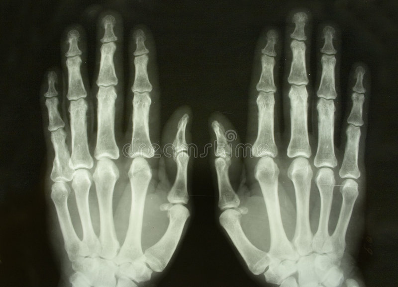 X-ray front picture of the palms. X-ray picture of the palms of adult women convenient as a black background royalty free stock photography