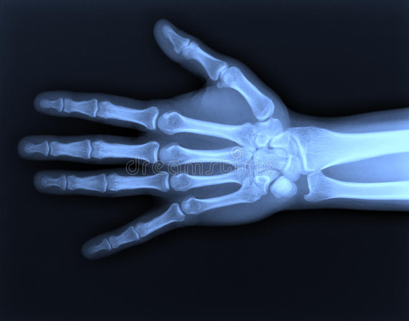 X-ray hand. royalty free stock photography