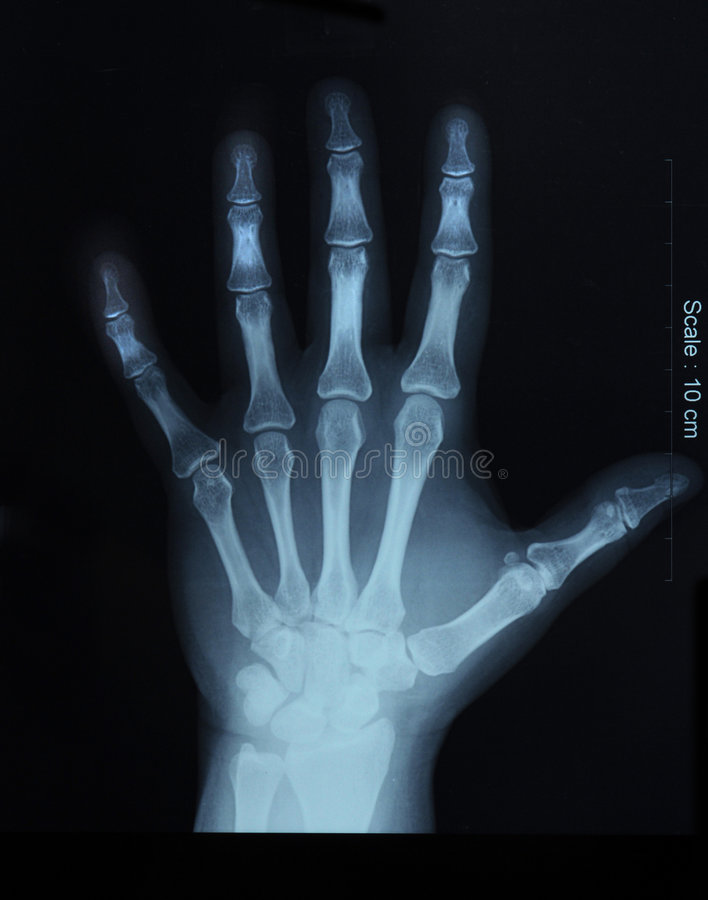 X-ray of hand; top view. X-ray film of hand, top view stock photo