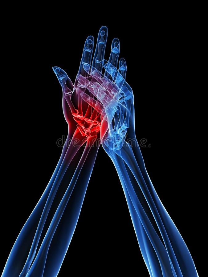 Free X-ray Hands - Arthritis Royalty Free Stock Photos - 12695008