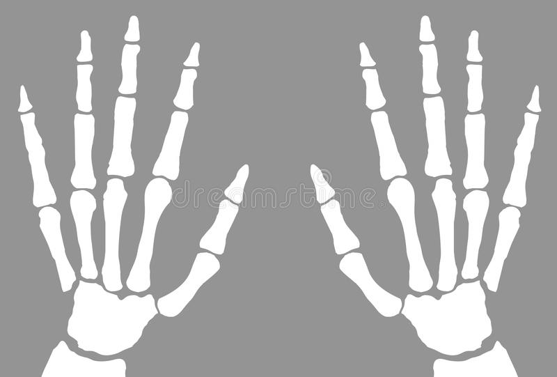 X-Ray Of Hands vector illustration
