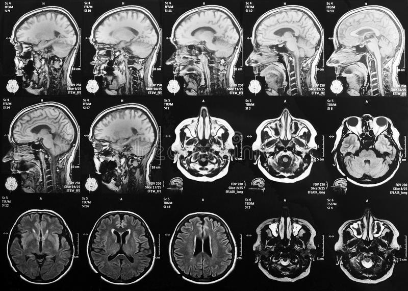 X-ray head and brain. Magnetic resonance imaging of the brain stock image